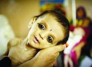 Malnutrition baby
