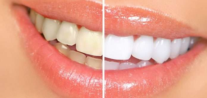 how to get whiten teeth