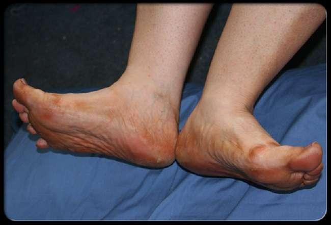 diabetes_foot