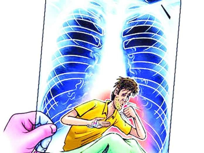 17 thousand TB patients increased in one year in the state