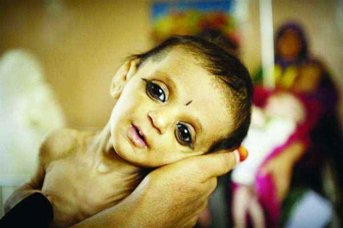 508 babies died in 9 months in melghat