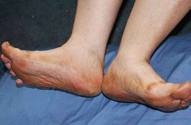 Diabetic patients pain increase in foot during monsoon