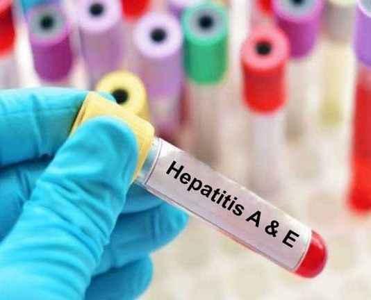 Hepatitis e occurring in monsoon
