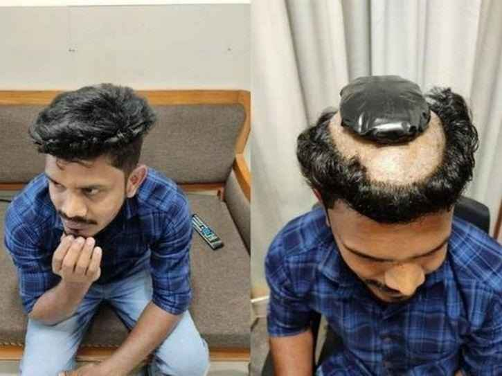 man smuggling 1 kg gold under his wig