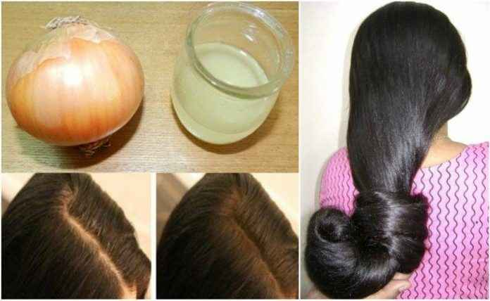 hair growth winter use onion juice