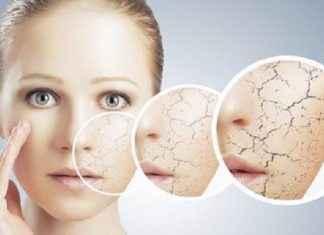winter skincare mistakes you must follow