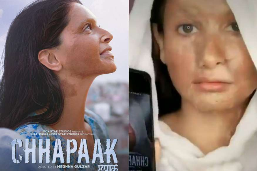 Deepika Padukone throws TikTok challenge on her Chhapaak acid survivor 'look'. Disgusting, says Internet