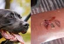 15 to 16 people are bitten by a dog in ghatkopar