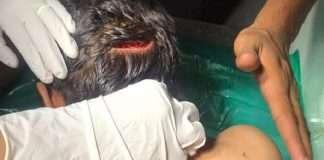 Child injured in leopard attack in Chehedi