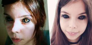 poland model ends up blind in one eye after botched eyeball tattoo procedure