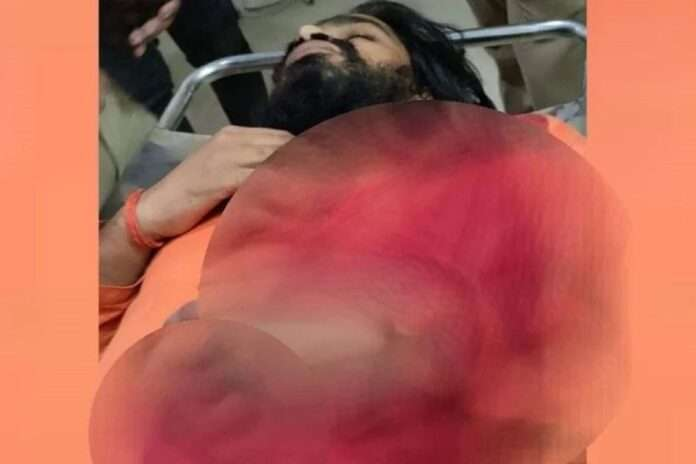 uttar pradesh temple priest shot in gonda lucknow referred