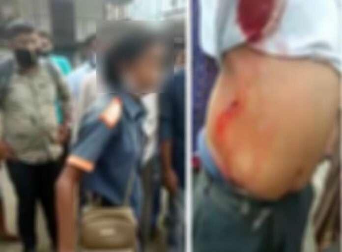 kdmc clean up marshall girl stabs drunk men in dombivli