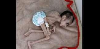 Yemeni boy, ravaged by hunger, weighs 7 kg