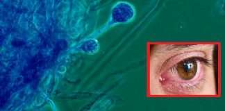 3.6% of patients get mucormycosis from hospital ICMR Say