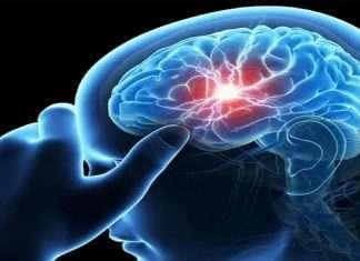 World Brain Tumor Day: What are the symptoms of brain tumor?