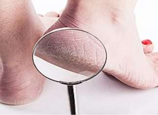 vitamins deficiency can crack heel