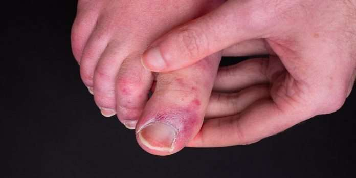 What is the Covid Toes? What are the symptoms and treatment