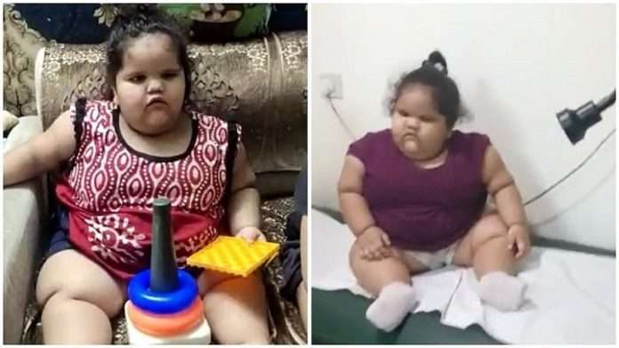2-Year-Old Weighing 45 Kg Undergoes Bariatric Surgery At Delhi Hospital