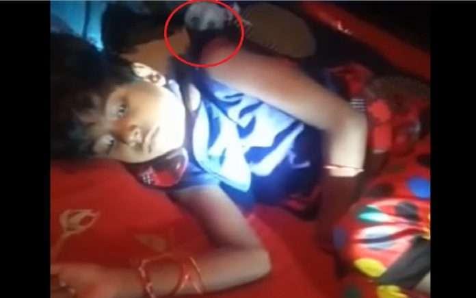 snake bite seven years old girl in wardha