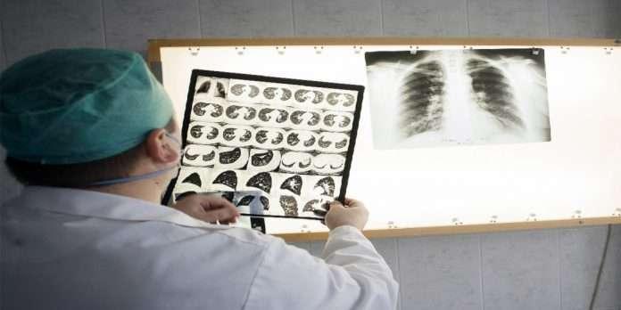M-Bipal medication methods for tuberculosis